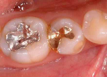 銀 歯 を 白い 歯 に