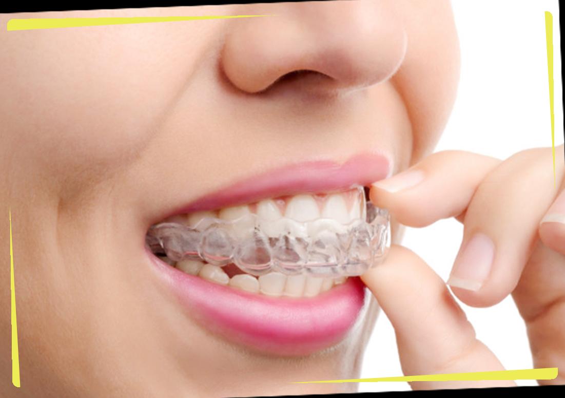 気になる前歯だけの歯並びを整える「部分矯正」−「お口全体の矯正治療」にも対応−